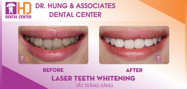 công nghệ Tẩy trắng răng hiện đại