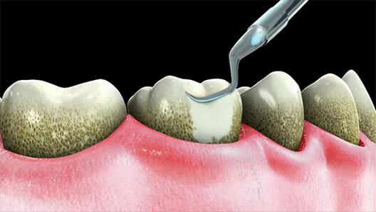 Cạo vôi răng được coi là yếu tố quan trọng hàng đầu