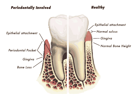 Nha chu nhiễm bệnh ở bên trái có tình trạng nướu tuột ra khỏi răng