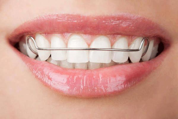 Hàm duy trì niềng răng là gì?