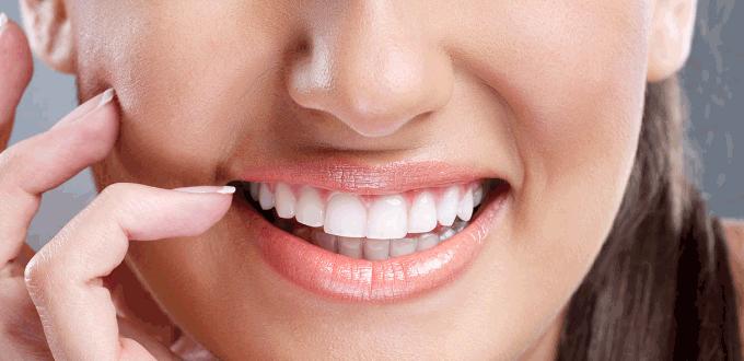 Tẩy trắng răng cực kỳ an toàn