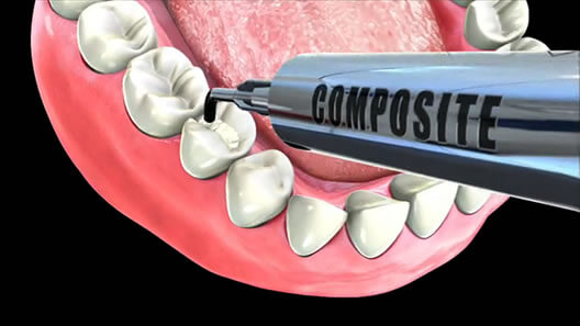 composite-filling-drhung