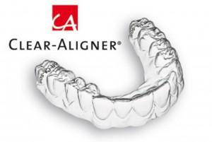 nieng-rang-clear-aligner-3