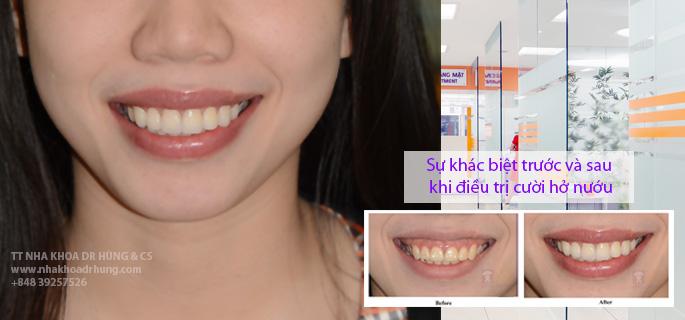 cuoi-ho-nuou-nha-khoa-dr-hung