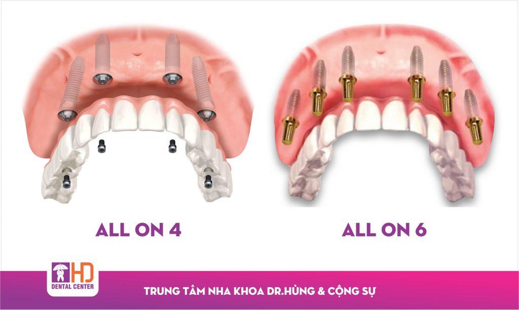 Implant nha khoa cho người mất răng toàn hàm