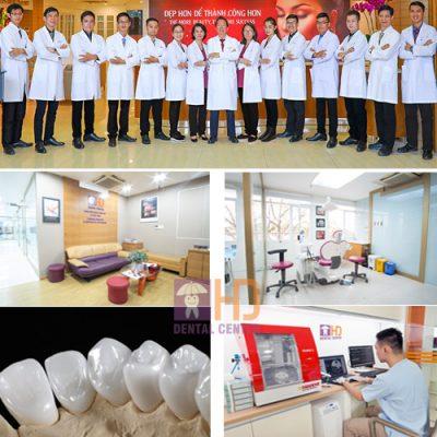 Vì sao Việt Kiều về Việt Nam làm răng thẩm mỹ ngày càng nhiều?