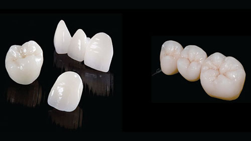 Răng sứ thẩm mỹ giải pháp hoàn hảo thay đổi nụ cười ngoạn mục.