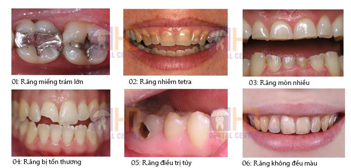 Các trường hợp bọc răng sứ thẩm mỹ để hoàn thiện nụ cười