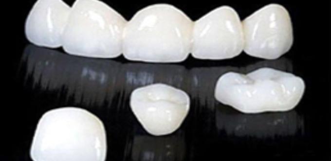 các loại răng su