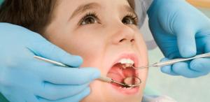 Trám Sealant phòng ngừa sâu răng