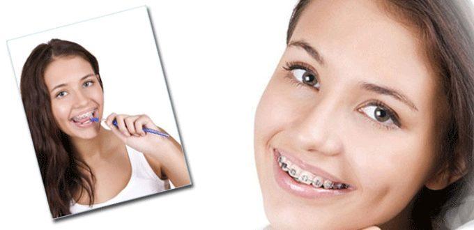 Chăm sóc răng niềng