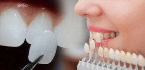 Veneer, Răng sứ thẩm mỹ
