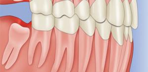 Nhổ răng khôn mọc lệch ngầmNhổ răng khôn mọc lệch ngầm