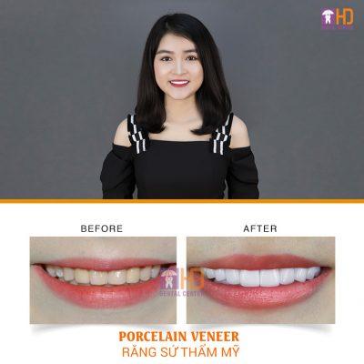 Công thức 100 – 100:Kết quả cuối cùng là họ sẽ có được hàm răng sứ mới với vẻ đẹp hoàn hảo đạt 100% như mong muốn và tuổi thọ của răng thật sẽ đi cùng họ đến hết cuộc đời