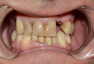 Cone Beam CT 02 - nha khoa dr hung