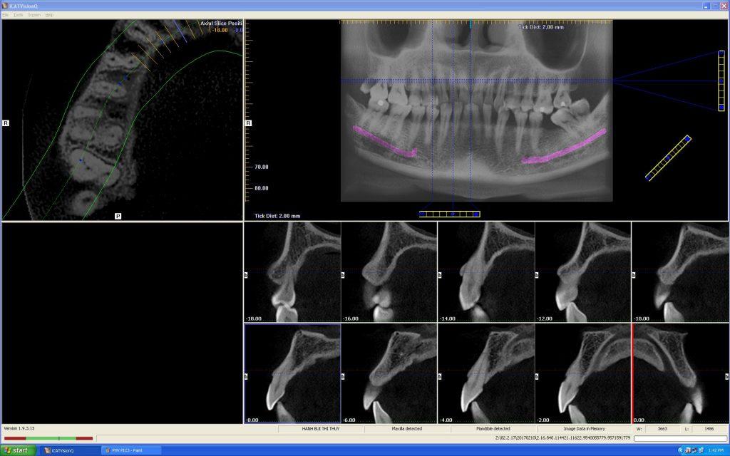 Cone Beam CT 07 nha khoa dr hung