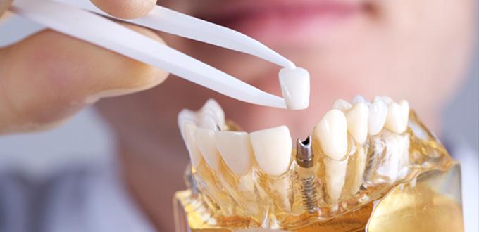 Chi phí và chất lượng các loại Implant trên thị trường hiện nay phụ thuộc yếu tố nào?
