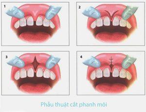 ky-thuat-cat-phanh-moi-01 (3)