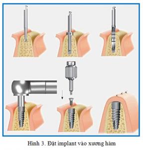 thời gian làm phục hình với implant dr hung