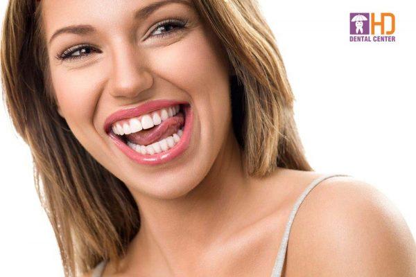 """""""Răng phải đẹp và bạn cũng phải khỏe"""""""