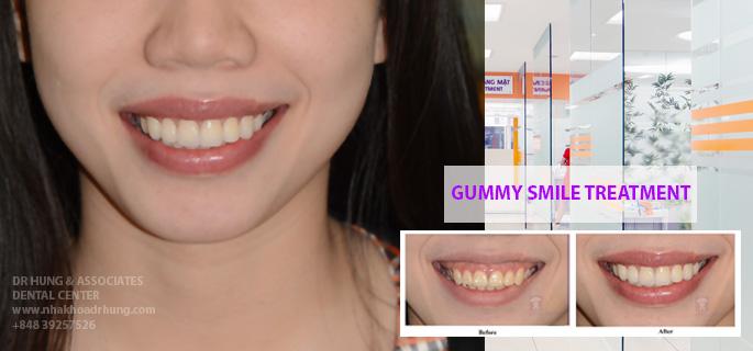 Khách hàng điều trị cười hở lợi kết hợp với Veneer sứ siêu mỏng tại TT nha khoa Dr Hùng