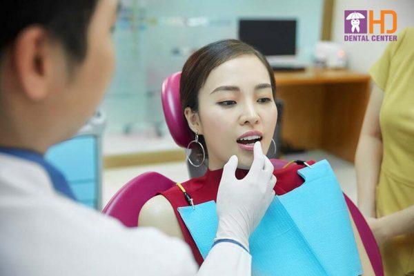 Natuaral Smile Design tại nha khoa Dr Hùng