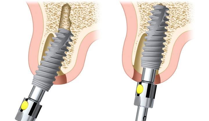 Implant nha khoa nào tốt nhất