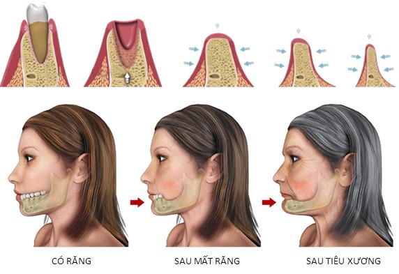 giải pháp răng giả cho người lớn tuổi