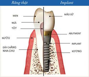 hình ảnh cấy ghép implant