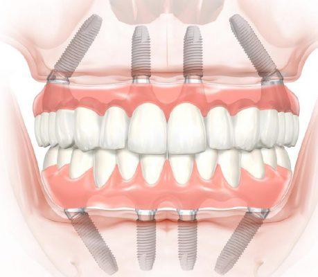Giải pháp Implant cho người mất răng toàn hàm