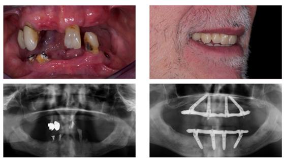 Giải pháp phục hình trên 4,6 implant
