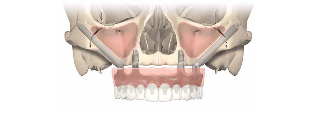 Giải pháp implant xương gò má (Zygoma implant)