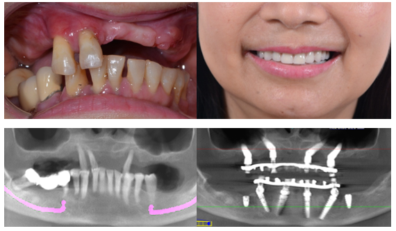 Hình ảnh về ca lâm sàng phối hợp giữa All-on-4 hàm dưới và Zygoma hàm trên