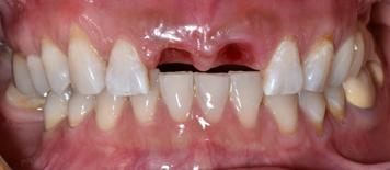 trồng răng
