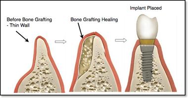 Đặt implant trì hoãn kết hợp ghép xương