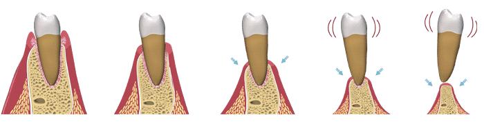 Bệnh nha chu là một trong những nguyên nhân gây tiêu xương hàm