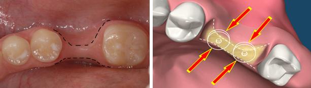 mất răng lâu ngày