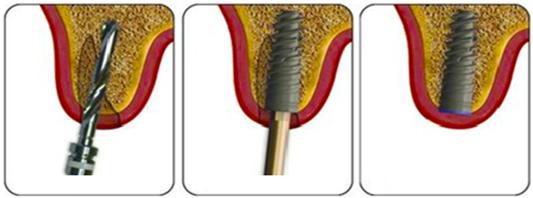 Trồng răng implant để thay thế răng mất