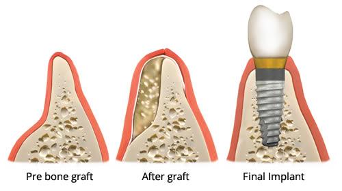 Phẫu thuật ghép xương là gì?