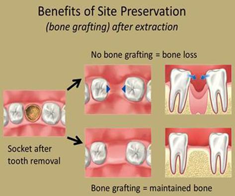 Phẫu thuật ghép xương răng tại bệnh viện Worldwide