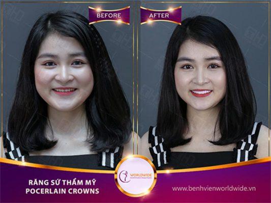 Hình ảnh trước và sau khi làm răng sứ thẩm mỹ