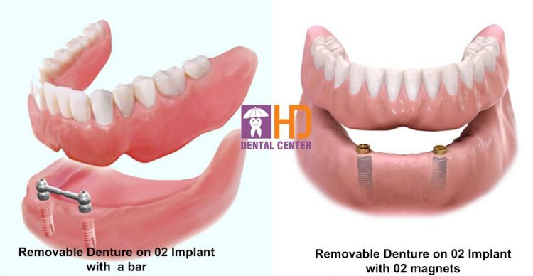 removable denture on 2 implants