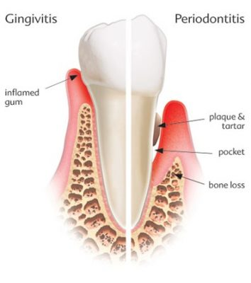 TREATMENT FOR GINGIVITIS AND PERIODONTITIS