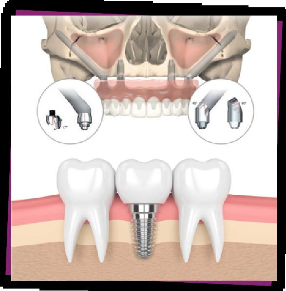 Zygoma Implant