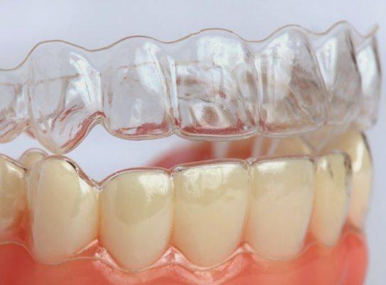 Khay chỉnh nha Invisalign được làm bằng vật liệu SmartTrack® mềm dẻo, dễ tháo lắp