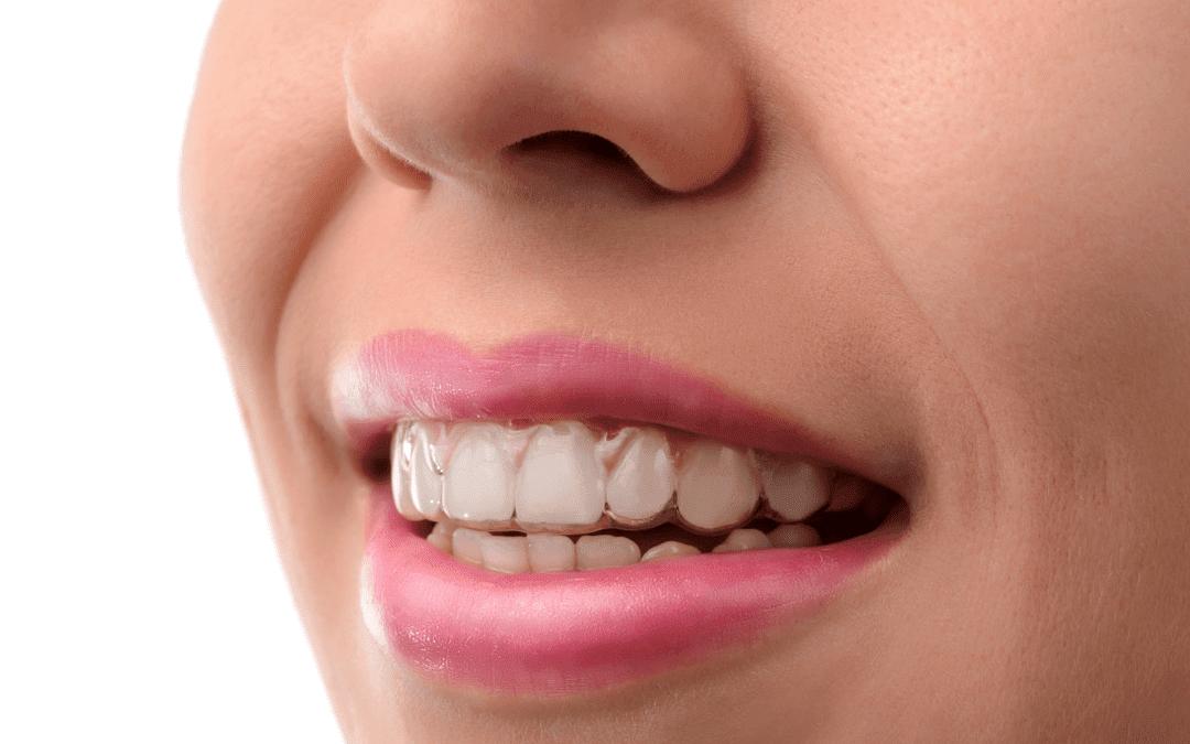 Bạn có tin cô gái ấy đang đeo khay niềng răng trong suốt invisalign?