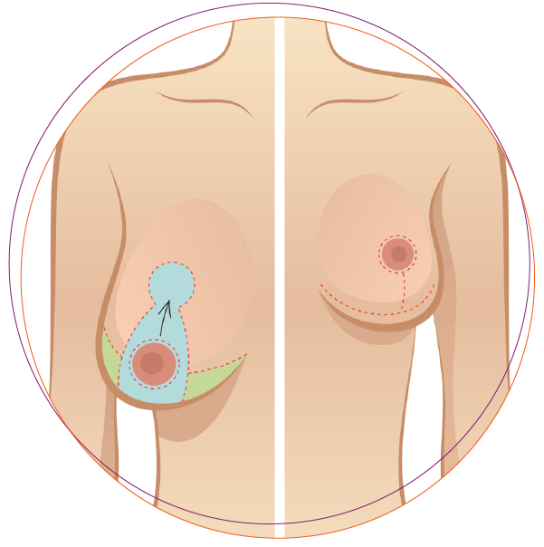 thẩm mỹ ngực