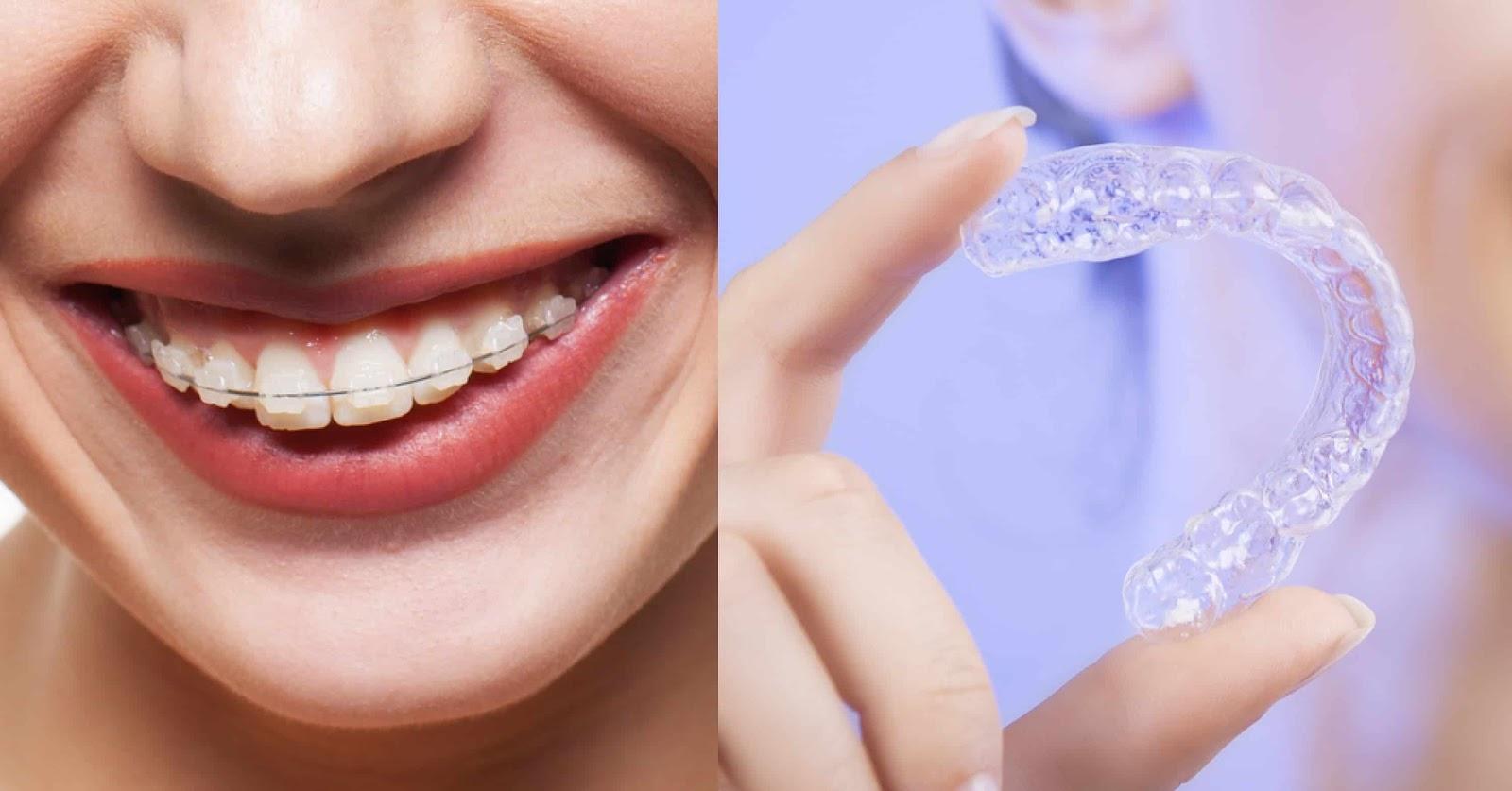 Niềng răng không mắc cài Invisalign có nhiều ưu điểm so với phương pháp truyền thống