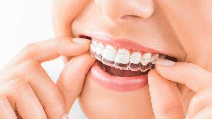 Giá niềng răng Invisalign liệu có tương xứng với hiệu quả?
