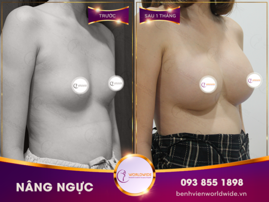 Fat Transfer Breast Augumentation